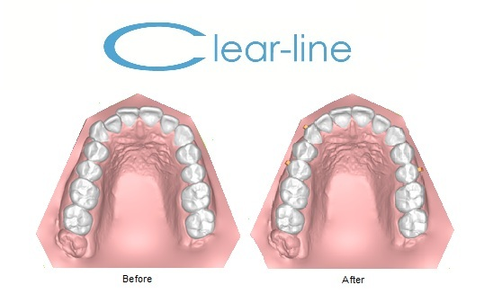 clear-line treatment