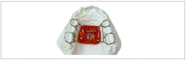 Orthodontic Appliances Alfodontics Dental Lab Pty Ltd